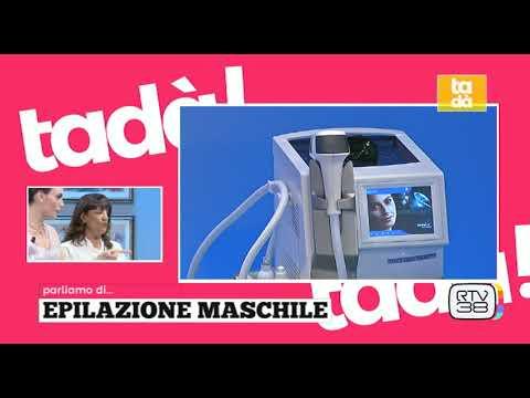 Ancora un approfondimento su Tadà in tema di epilazione laser maschile!